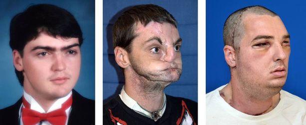 Richard Lee Norris leikattiin vuonna 2012 Yhdysvalloissa. Muun muassa miehen leuka, hampaat ja kieli operoitiin uusiksi.