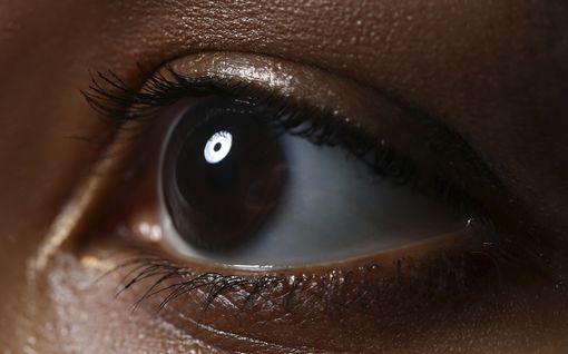 Sairaudet, jotka voivat näkyä silmistä – lääkäri listaa huolestuttavat oireet