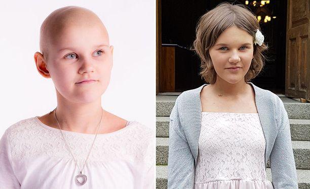 Millalla todettiin syöpä ensimmäisen kerran vuonna 2015.
