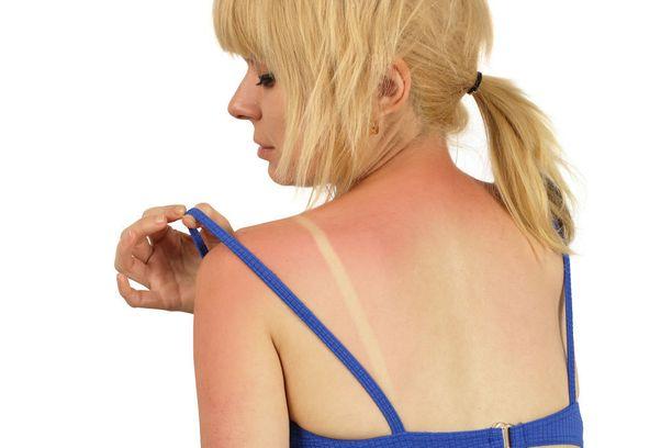 Liiallinen ultraviolettisäteily on iholle iso riski.