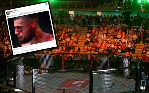 Ei herkille: UFC-ottelija sai karmean vamman kyynärpääiskusta