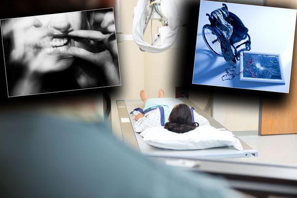 """Eräs Valviran rajoittama lääkäri teki huolimattomia röntgenlähetteitä, joissa pyyntönä saattoi olla pelkästään """"käsi"""" tai """"jalka"""". Lähetteissä oli myös kopioitu vanhoja tekstejä, joilla ei ollut mitään tekemistä ajankohtaisen ongelman kanssa. Kuvituskuva."""