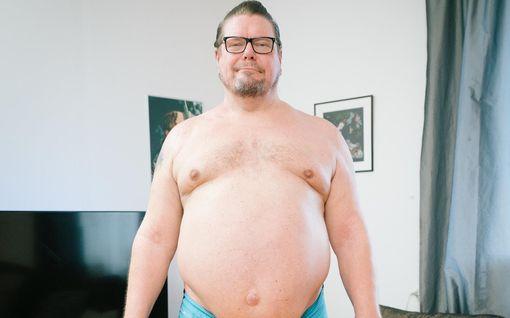 Henry Saaren paino nousi 158 kiloon – teki elämäntapamuutoksen Olet mitä syöt -ohjelmassa: Katso kuva lähtötilanteesta