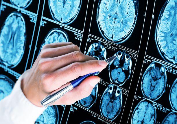 Läpimurtoa Alzheimerin taudin pysäyttämiseen on etsitty kiivaasti.