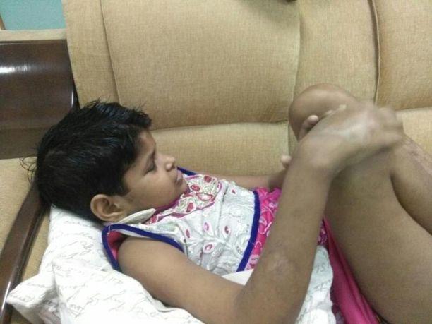 Tyttöä hoidettiin sairaalassa Lucknowissa, Uttar Pradeshin osavaltiossa.