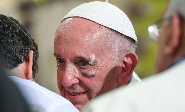 Paavi sai silmäkulmaansa laastarin.
