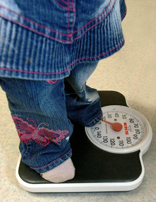 Lapsen lihavuuteen tulee ensisijaisesti vaikuttaa elintapoja viilaamalla.