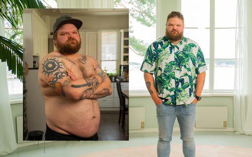 Olet mitä syöt: Radiojuontaja sulatti vyötäröltään 7 senttimetriä, painoa putosi huimat 10 kiloa