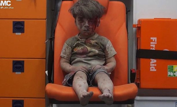Omranista tuli syyrialaisten kärsimysten symboli.