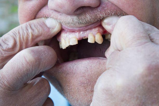 Jarmo-opettajan hampaat eivät ole vieläkään kunnossa.