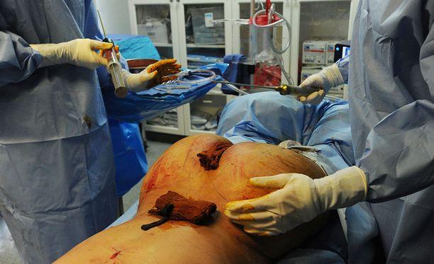 Pintanguyn kehittämä Brazilian Butt Lift on operaatio, jossa kehon omaa rasvaa pumpapaan pakaroihin.