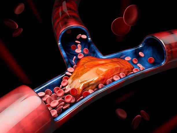 Kuvassa havainnollistetaan verihyytymää verisuonessa.