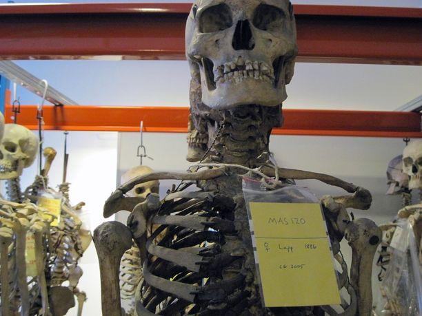 Kolkko varasto Uppsalan yliopistossa vuonna 2011: edessä haudasta ryöstetyn saamelaisnaisen luuranko.