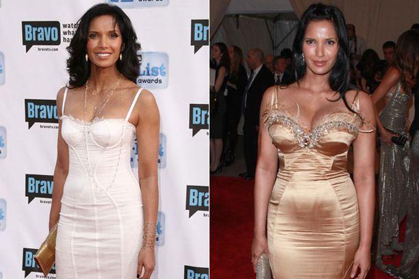 ENNEN JA JÄLKEEN Lakshmi vasemmassa kuvassa toukokuussa 2009 ja oikealla toukokuun alussa 2010.