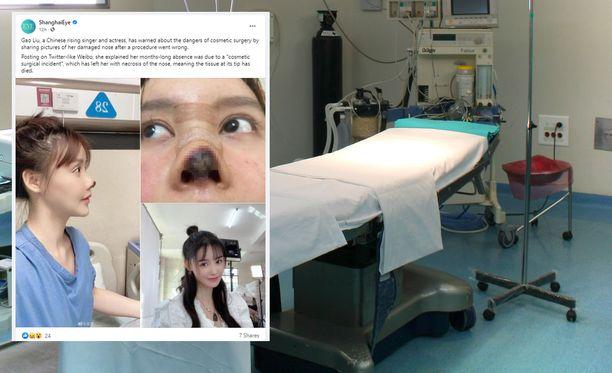 """Gao Liu halusi, että hänen nenäänsä """"muotoillaan vain pikkuisen"""", koska hän arveli sen edistävän uraansa."""