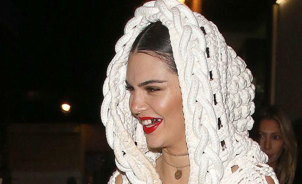 Kendall Jennerillä on uusi hymy.