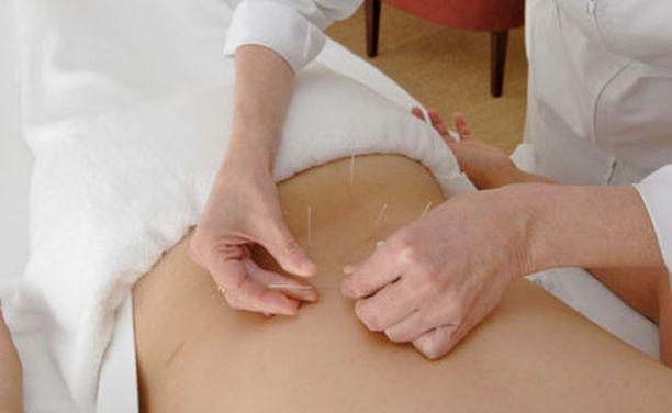 Akupunktio perustuu teoriaan, jonka mukaan neulat vapauttavat kehon energiaa.