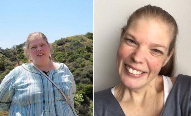 Sari lähti lääkärin kehotuksesta sairaalan laihdutusryhmään. Hän kertoo Facebook-sivullaan katuvansa sitä päätöstä joka päivä, koska sairastui syömishäiriöön ja masennukseen.