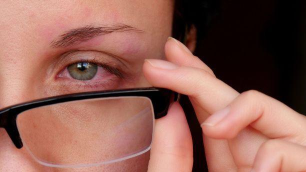 Silmien punoitus on yksi kuivasilmäisyyden oire.