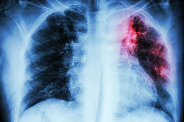 Tuberkuloosi on Mycobacterium tuberculosis -bakteerin aiheuttama infektio eli tartuntatauti.