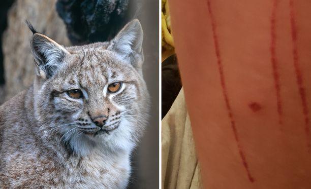 Ilves hyökkäsi Savossa asuvan Jounin kimppuun perjantaina. Oikeassa kuvassa näkyvät eläimen aiheuttamat vammat Jounin jalassa. Kuvan ilves on kuvituskuva, eikä liity tapaukseen.