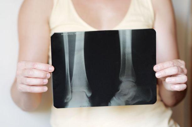 Osteoporoosin omahoidon lähtökohtana on ravitsemus, joka sisältää riittävästi kalsiumia ja proteiinia, riittävä D-vitamiinin saanti ja liikunta kunkin oman tilanteen mukaan.