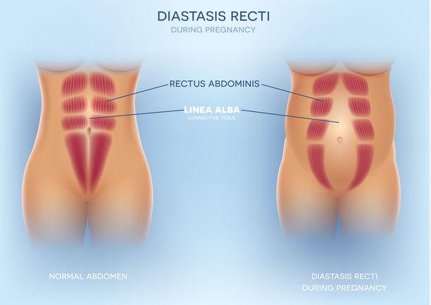 Kuvassa vasemmalla normaalit suorat vatsalihakset ja oikealla erkaantuneet vatsalihakset. Myös miehen vatsalihakset voivat erkaantua, jos vatsa kasvaa.