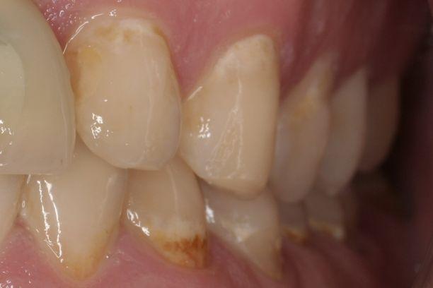 Kuvassa näkyy alkavia kariesvaurioita hampaiden ienrajoissa. Reiänalut tulevat sellaisille kariesbakteerien lymypaikoille, joihin on kaikessa rauhassa saanut kertyä paksu bakteeriplakki. Oikealla hoidolla vauriot voidaan kuitenkin vielä pysäyttää.