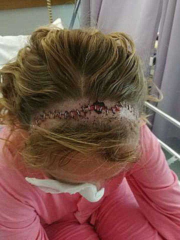 Kuvassa Terttu Marja leikkauspäivän jälkeen. Leikkausarpi kulkee pään yli, ulottuen ohimolta toiselle.
