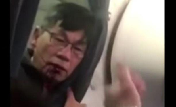 Verinen David Dao lentokoneessa toisen matkustajan kuvaamalla videolla.