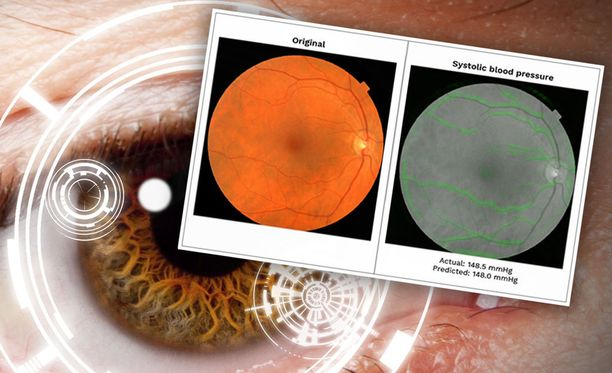 Silmään kurkkaamalla voidaan ennustaa sydänsairauksia.