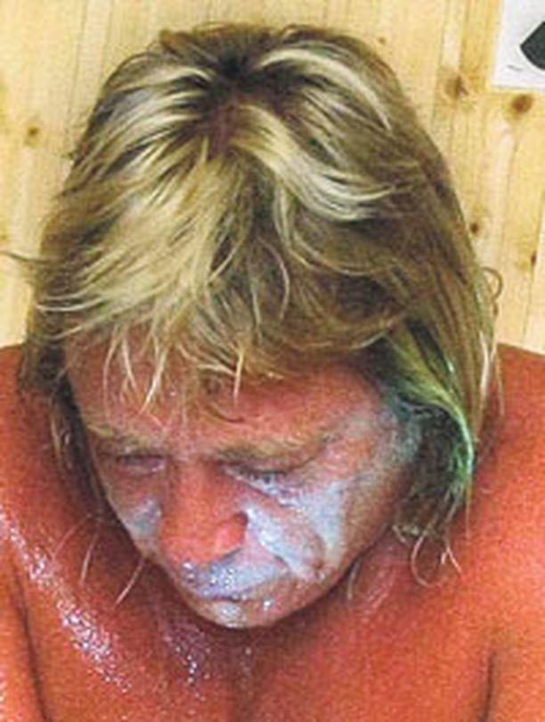 Timo Kaukosen hoidot jatkuvat Päijät-Hämeen keskussairaalassa.