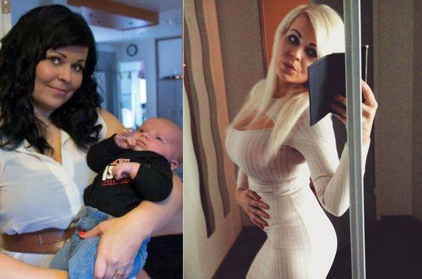 Hanna halusi vähentää riskiä vakavalle sairastumiselle, mitä ylipaino lisäsi.