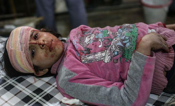 Pommi-iskussa vahingoittunut lapsi sai hoitoa Syyriassa helmikuussa 2017.