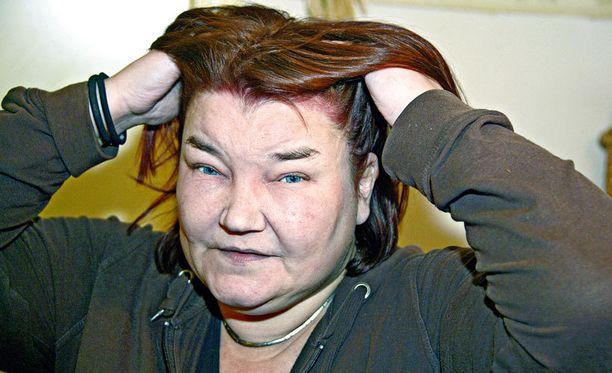 HENGENVAARA Jaana Vänskä sai haluamansa punaiset hiukset, mutta joutui kaupantekijäisiksi lähes viikoksi hengityskoneeseen. Hiusvärin aiheuttama allerginen reaktio oli niin voimakas, että se johti hengenvaaraan.