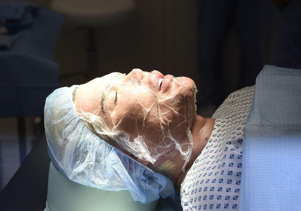 """Ihmis-Ken kärsii """"huonosta ihosta"""" ja kävi taannoin hoidossa, jolla voi parantaa sen kuntoa."""