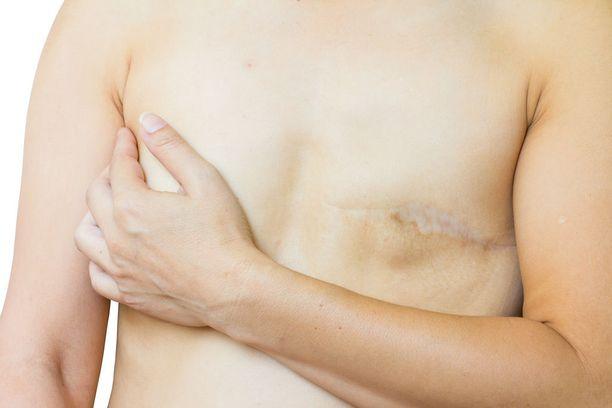 Leikkausten jälkeen voi ilmaantua arpikudosta, jonka kiinnikkeet leviävät syvälle. Niistä aiheutuu usein särkyjä ja liikerajoitteita.