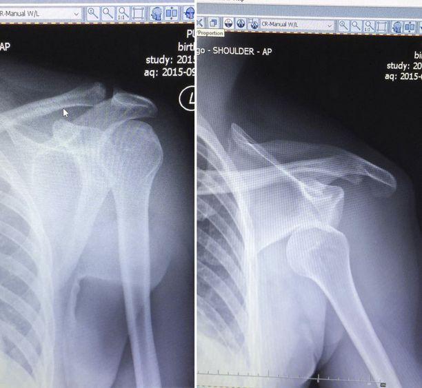 Röntgenkuvat paljastivat Puurulan tylyn diagnoosin.
