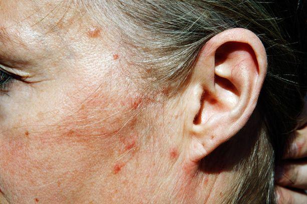 Sääskien eli hyttysten puremat aiheuttavat reaktioita lähes kaikille. Reaktioiden voimakkuus on kuitenkin yksilöllistä.