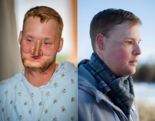 Kuva ennen kasvojensiirtoa ja reilu puoli vuotta myöhemmin.
