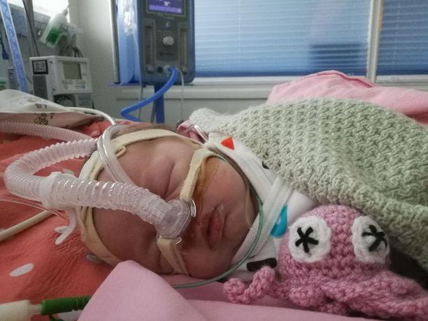 Kuukauden ikäisen vauvan kunto heikkeni kuudessa tunnissa pirteästä vauvasta väsyneeksi ja vaikeasti herätettäväksi eikä ruokakaan maistunut. Kuumetta ei ollut.