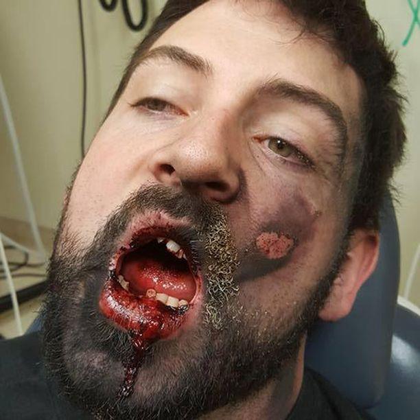 Hall menetti räjähdyksessä seitsemän hammasta.