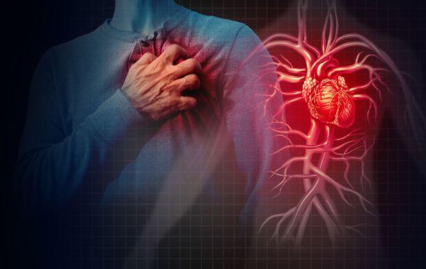 Sydänkohtauksesta kertovat merkit eivät aina ole niin selviä.