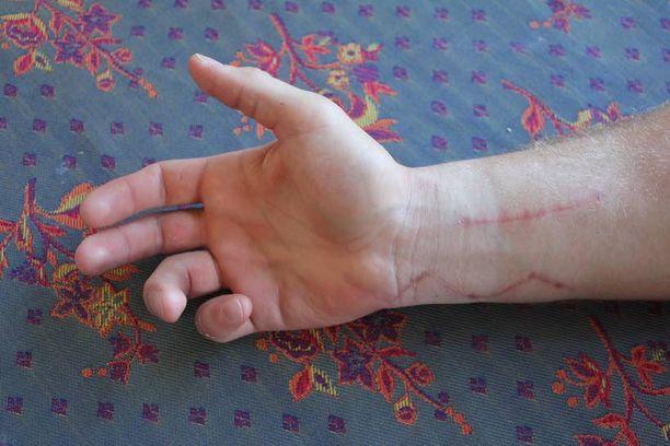 Oikean käden kaksi pienintä sormea eivät vielä toimi kunnolla. Myöskään ranteessa ei ole täyttä vääntöä.