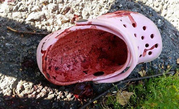 Lapsen kengän ja jalan oli lävistänyt lasinsiru, joka teki pahaa jälkeä.