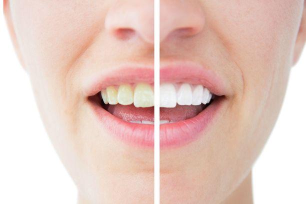 Monet saavat syntymässä norsunluunvalkoiset hampaat, mutta sävyjä löytyy aina keltaisesta harmaaseen.