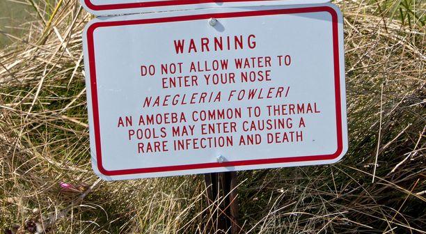 Näin uimareita varoitetaan amebasta Nevadan osavaltiossa.