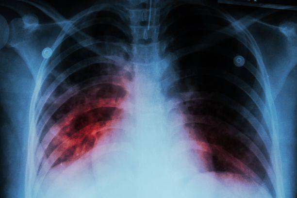 Tuberkuloosi ilmenee yleensä keuhkoissa, mutta bakteeri voi levitä verenkierron kautta muihinkin elimiin.