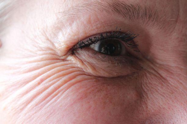 Naururyppyjä vai ei? Silmien ympärillä olevat rypyt voivat olla myös stressin merkki.