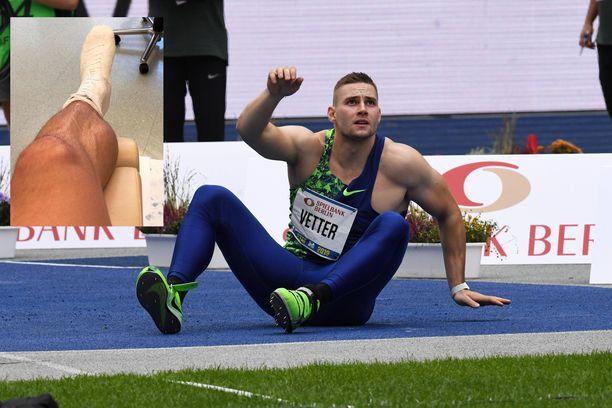 Johannes Vetterin vasemmassa jalassa on tanakka tuki.